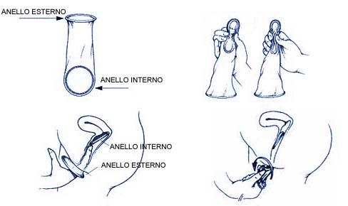 immagine illustrativa su come usare il femidom